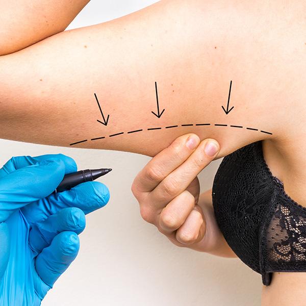 Brachioplasty<br>(Arm Lift)