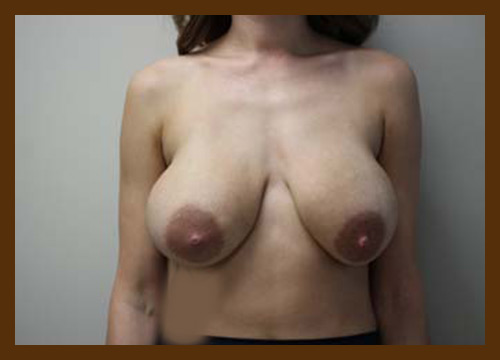 https://drdiaco.com/wp-content/uploads/2017/11/breast-lift-before1.jpg