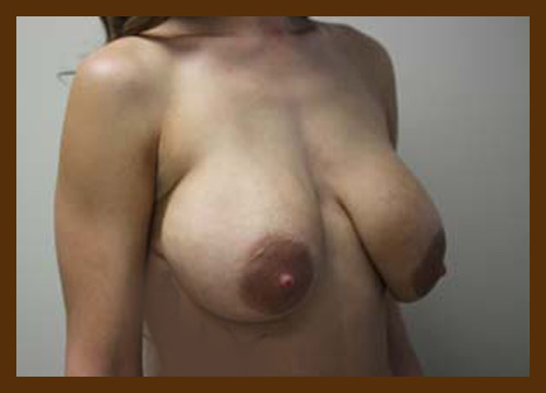 https://drdiaco.com/wp-content/uploads/2017/11/breast-lift-before2.jpg
