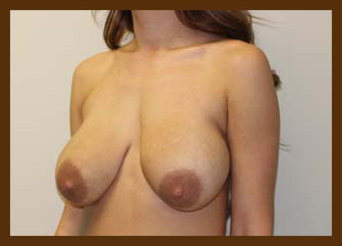 https://drdiaco.com/wp-content/uploads/2017/11/breast-lift-before3.jpg