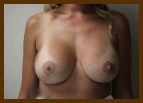 https://drdiaco.com/wp-content/uploads/2017/11/breast-lift-w-implants-after-1.jpg