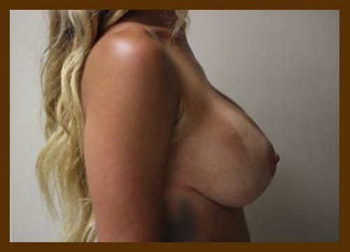 https://drdiaco.com/wp-content/uploads/2017/11/breast-lift-w-implants-after-4.jpg