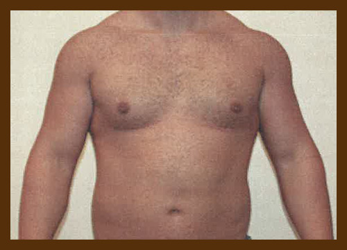https://drdiaco.com/wp-content/uploads/2017/11/gynecomastia-after1.jpg