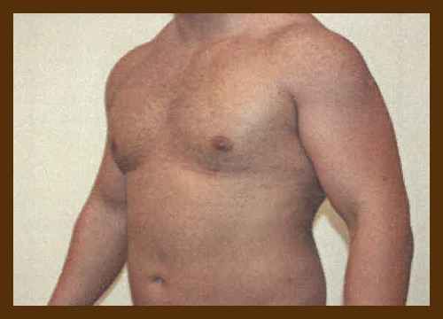 https://drdiaco.com/wp-content/uploads/2017/11/gynecomastia-after3.jpg