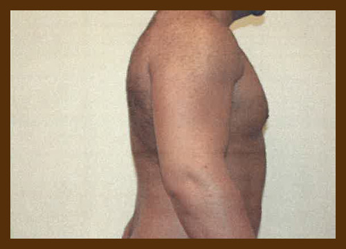 https://drdiaco.com/wp-content/uploads/2017/11/gynecomastia-after4.jpg