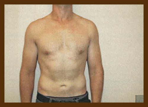 https://drdiaco.com/wp-content/uploads/2017/11/gynecomastia-after6.jpg
