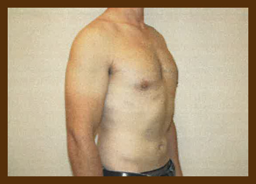 https://drdiaco.com/wp-content/uploads/2017/11/gynecomastia-after7.jpg