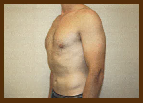 https://drdiaco.com/wp-content/uploads/2017/11/gynecomastia-after8.jpg