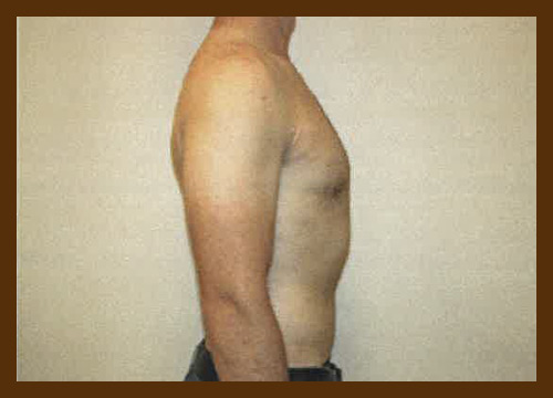 https://drdiaco.com/wp-content/uploads/2017/11/gynecomastia-after9.jpg