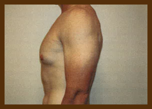 https://drdiaco.com/wp-content/uploads/2017/11/gynecomastia-before10.jpg
