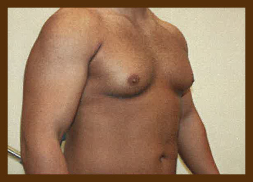 https://drdiaco.com/wp-content/uploads/2017/11/gynecomastia-before2.jpg