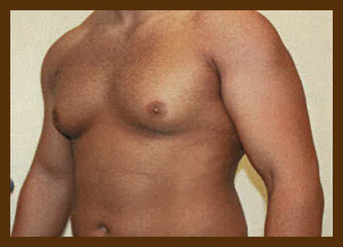 https://drdiaco.com/wp-content/uploads/2017/11/gynecomastia-before3.jpg