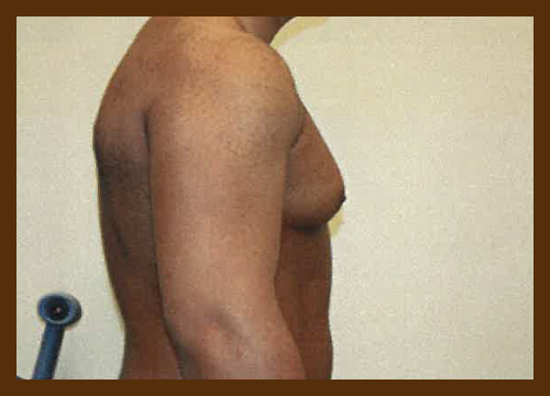 https://drdiaco.com/wp-content/uploads/2017/11/gynecomastia-before4.jpg