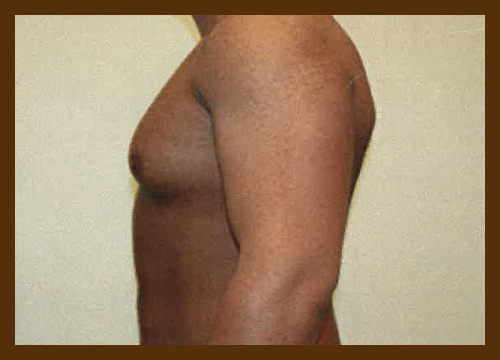 https://drdiaco.com/wp-content/uploads/2017/11/gynecomastia-before5.jpg