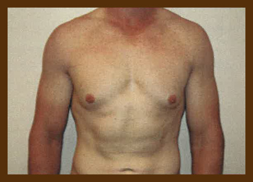 https://drdiaco.com/wp-content/uploads/2017/11/gynecomastia-before6.jpg