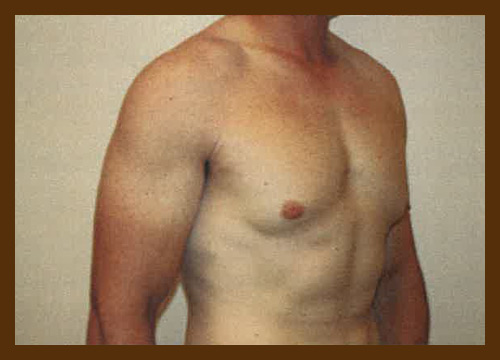 https://drdiaco.com/wp-content/uploads/2017/11/gynecomastia-before7.jpg