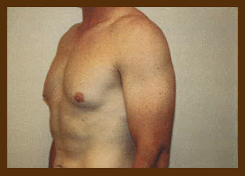 https://drdiaco.com/wp-content/uploads/2017/11/gynecomastia-before8.jpg