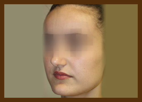 https://drdiaco.com/wp-content/uploads/2017/11/rhinoplasty-before1.jpg