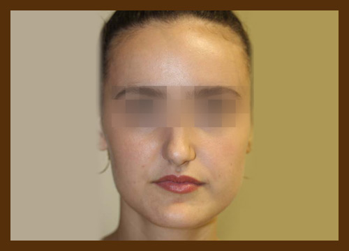 https://drdiaco.com/wp-content/uploads/2017/11/rhinoplasty-before2.jpg