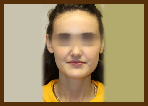 https://drdiaco.com/wp-content/uploads/2017/11/rhinoplasty-before3.jpg