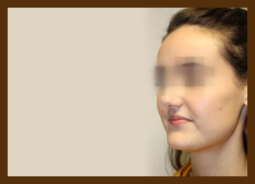https://drdiaco.com/wp-content/uploads/2017/11/rhinoplasty-before4.jpg